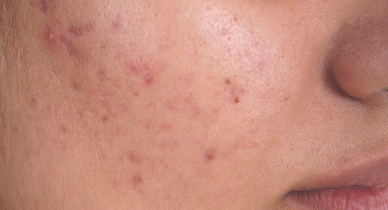 3 Natural Remedies To Get Rid Of Ugly Boils Faiza Beauty
